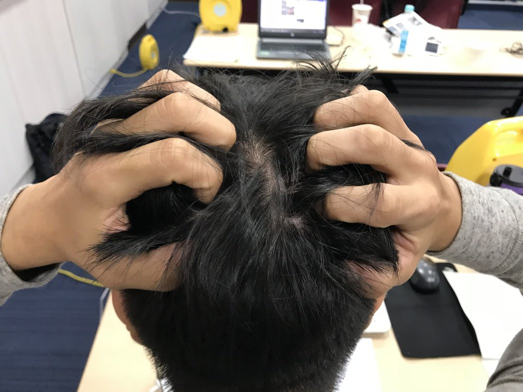 禿頭示意圖。記者李樹人/攝影