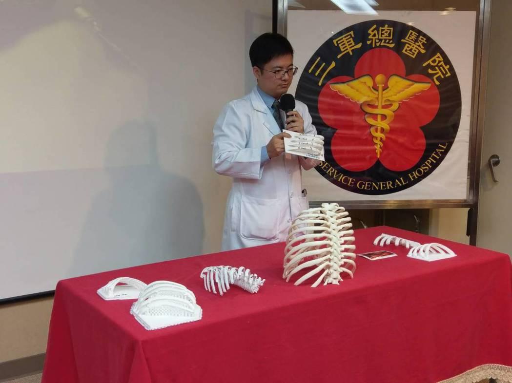 三總胸腔外科主治醫師陳穎毅展示胸腔肋骨3D列印模型。圖/三總提供