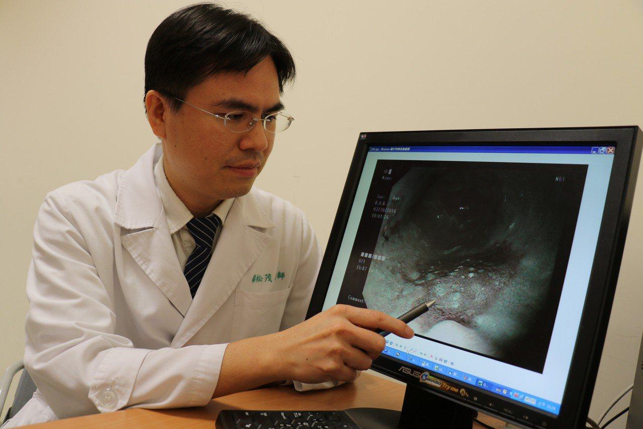 53歲葉先生去年3月胃脹痛得難過,到台中慈濟醫院檢查,確診是食道上、下段都已出現...
