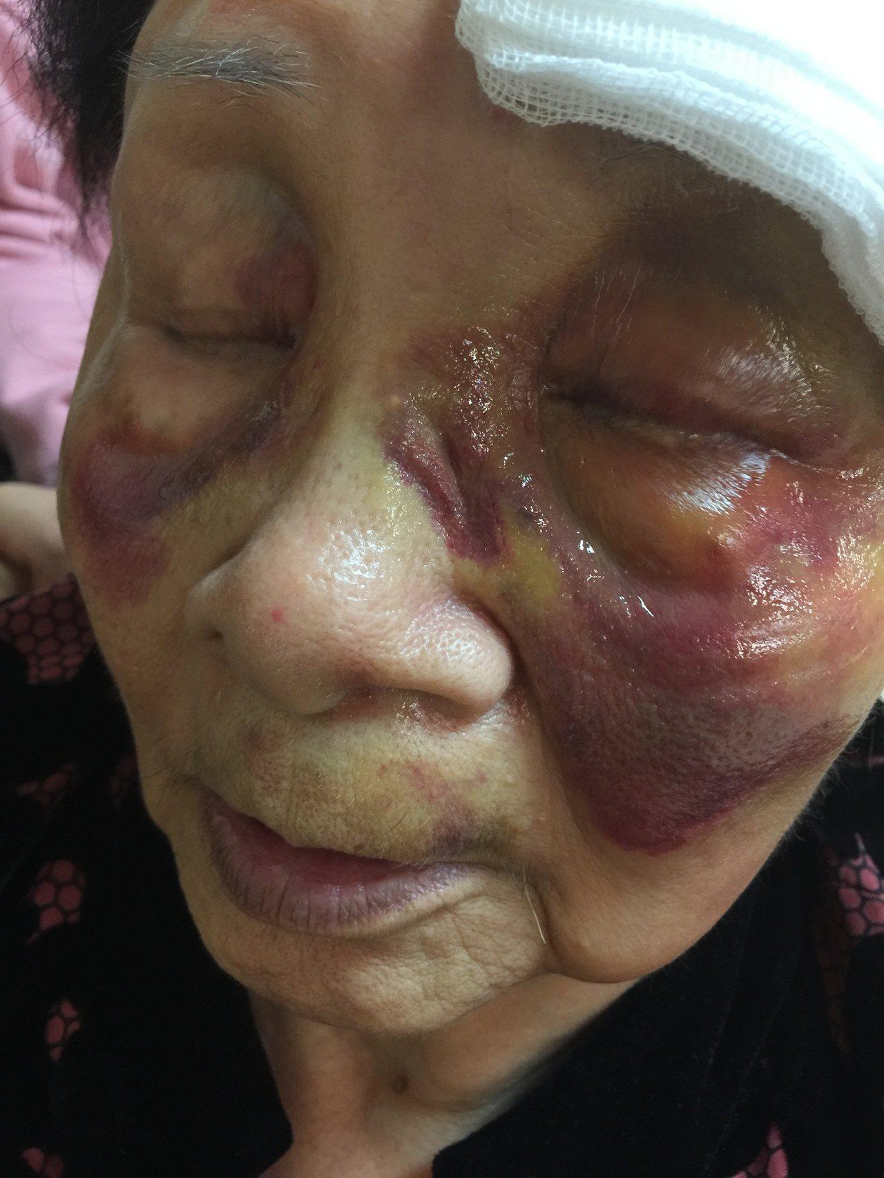 中視新聞前女主播母坐輪椅在人行道重摔,顏面受到多處挫傷。記者楊正海/翻攝