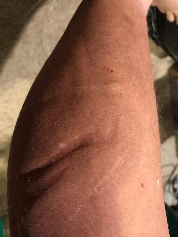埃德蒙兹在臉書上貼出遭外星人攻擊傷口。(埃德蒙兹臉書)