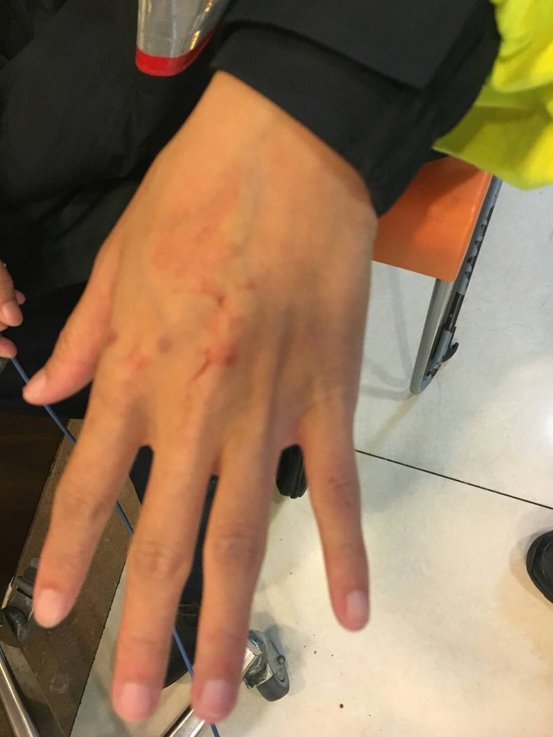 女警執勤遭醉漢徒手毆打,眼睛周圍及手部受傷。記者蕭雅娟/翻攝