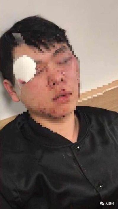 中國留學生 澳洲街頭又遭圍毆 黃瓊慧