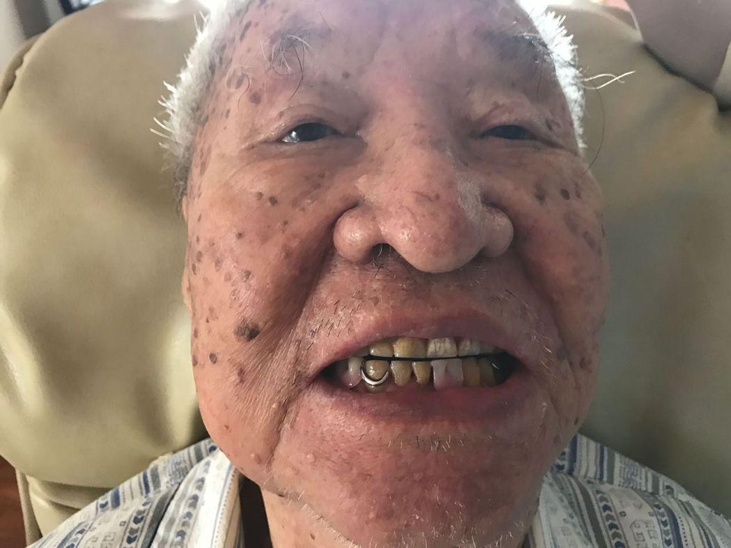 高姓老兵在牙醫羅界山二度家治療後,終於可以參加同學會了,開心露齒展笑顏。圖/羅界...