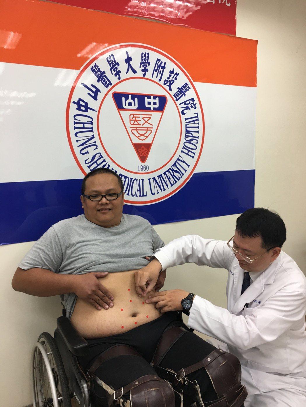 腹針得針灸肚臍周圍的8個穴位。圖/中山醫學大學附設醫院提供