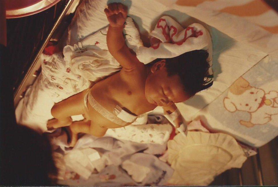 1997兩個月。台北台大醫院的葛西手術(膽道腸道吻合手術)。 圖/楊慧鉑提供