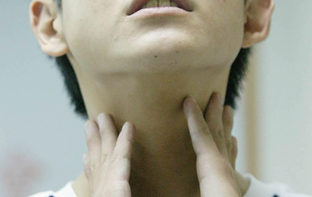 一旦發生扁桃腺周圍膿瘍,患者會出現嚴重喉嚨疼痛。 本報資料照片