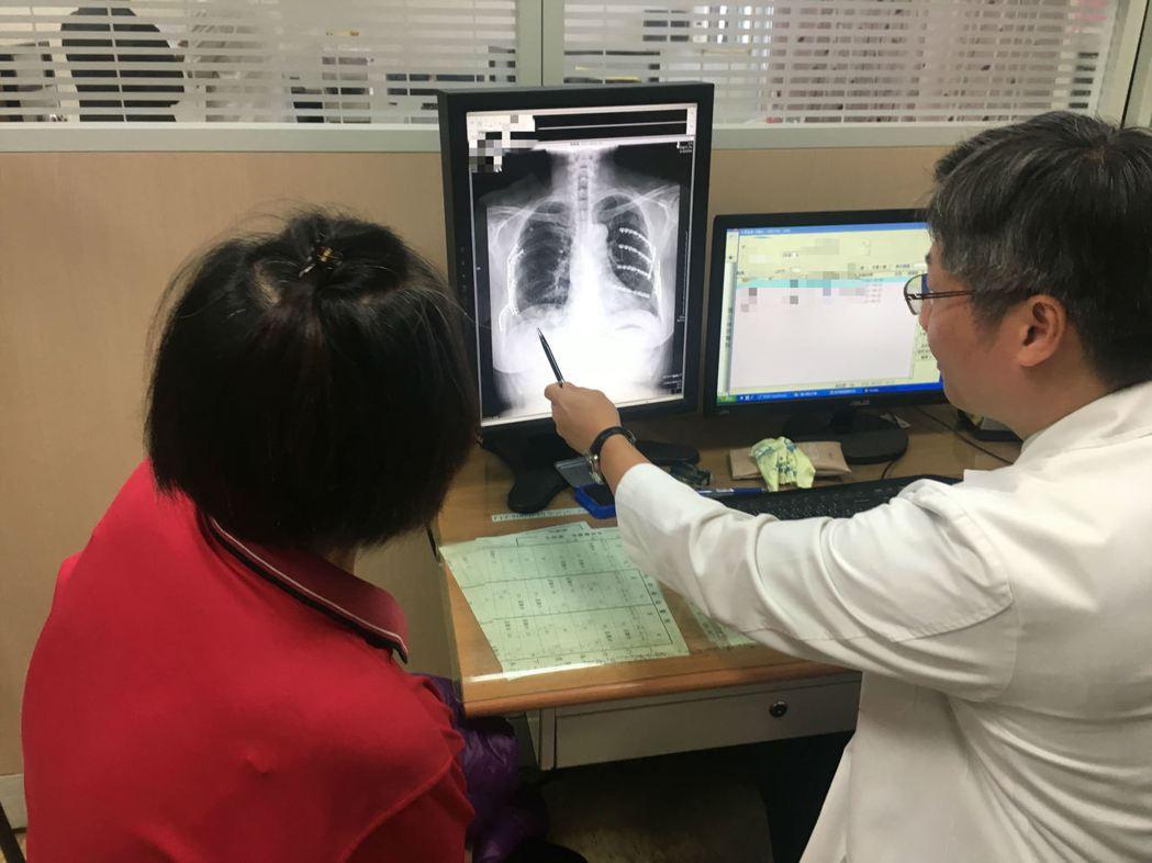 南投醫院胸腔外科主任謝志明(右)向張姓女病患說明肋骨治療狀況。圖/南投醫院提供