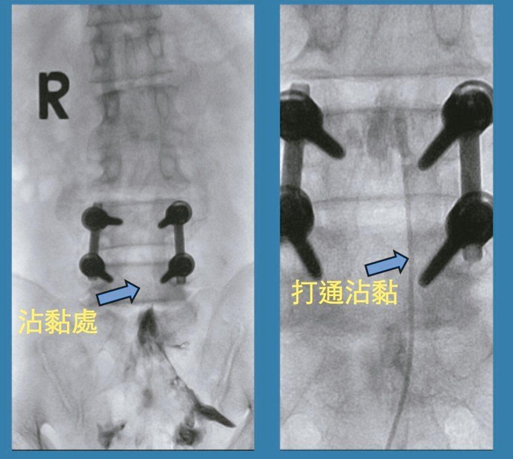 透過光導引進行脊椎微創水刀,確保手術安全,賦予病患與醫師雙重保障。 圖/湯其暾提...