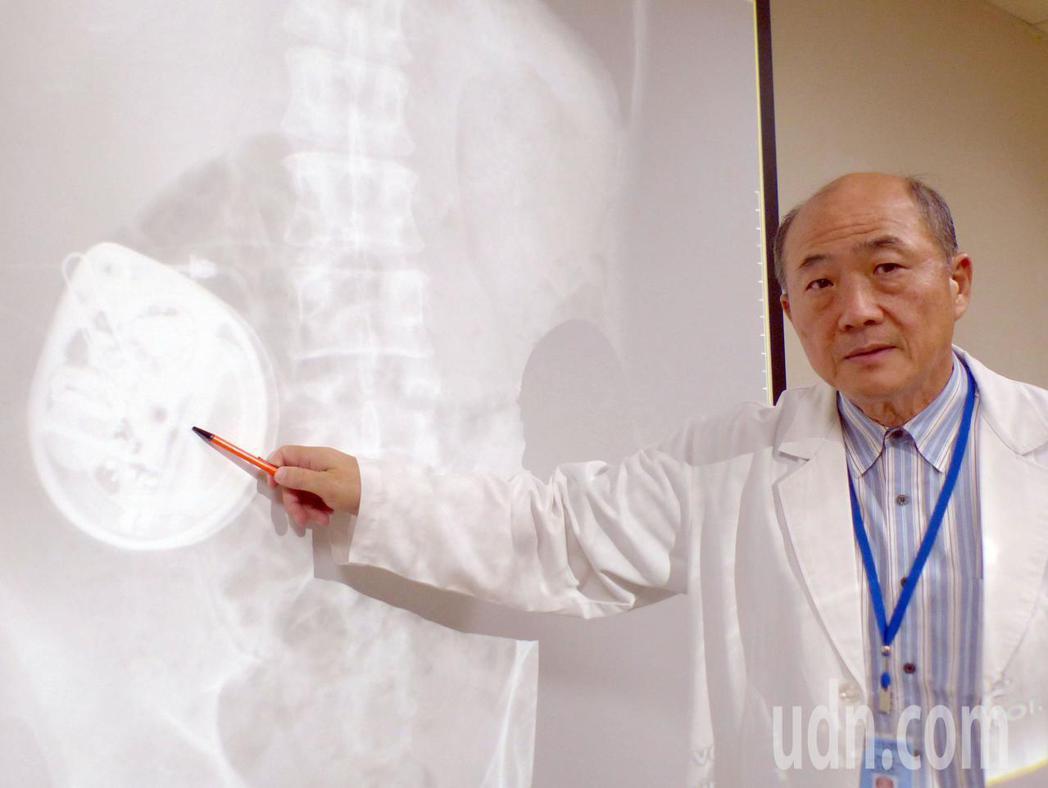 醫師劉榮東說明,林姓病患在腹部皮下植入幫浦,透過導管分次將藥物注入脊髓腔內,直接...