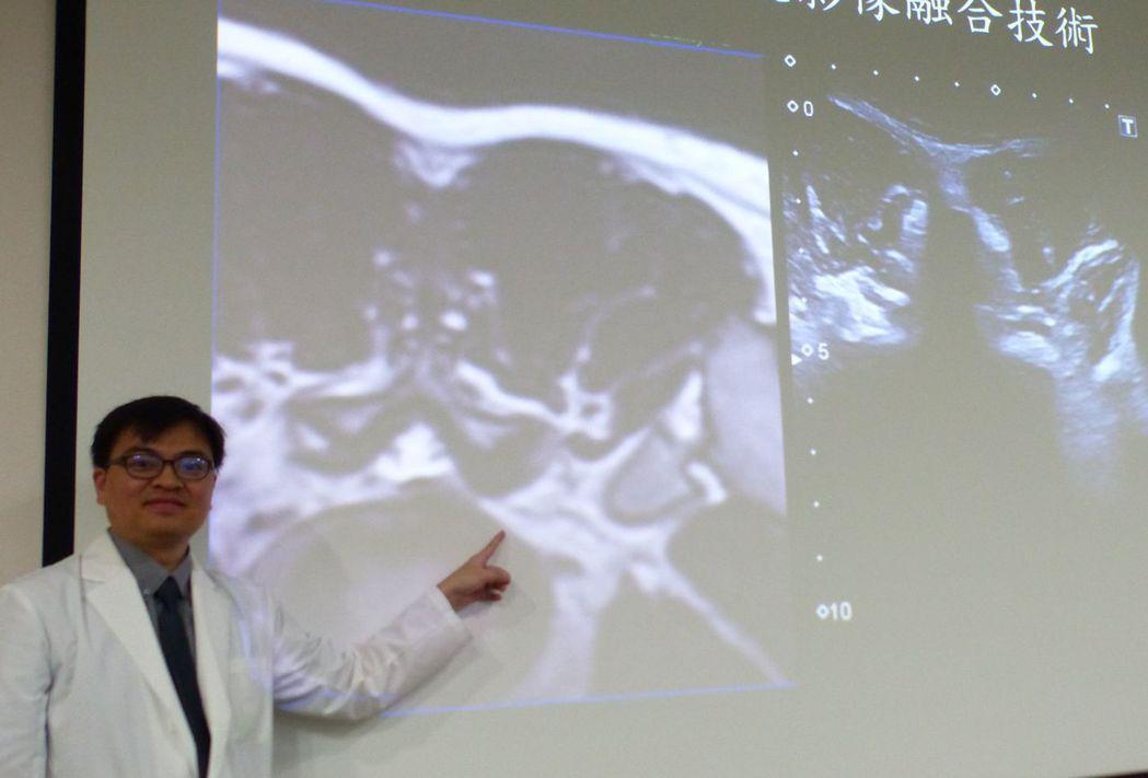 醫師蔡昇亨說明,林姓男大生經接受整合式影像導引輔助神經阻斷術治療後緩解。記者趙容...