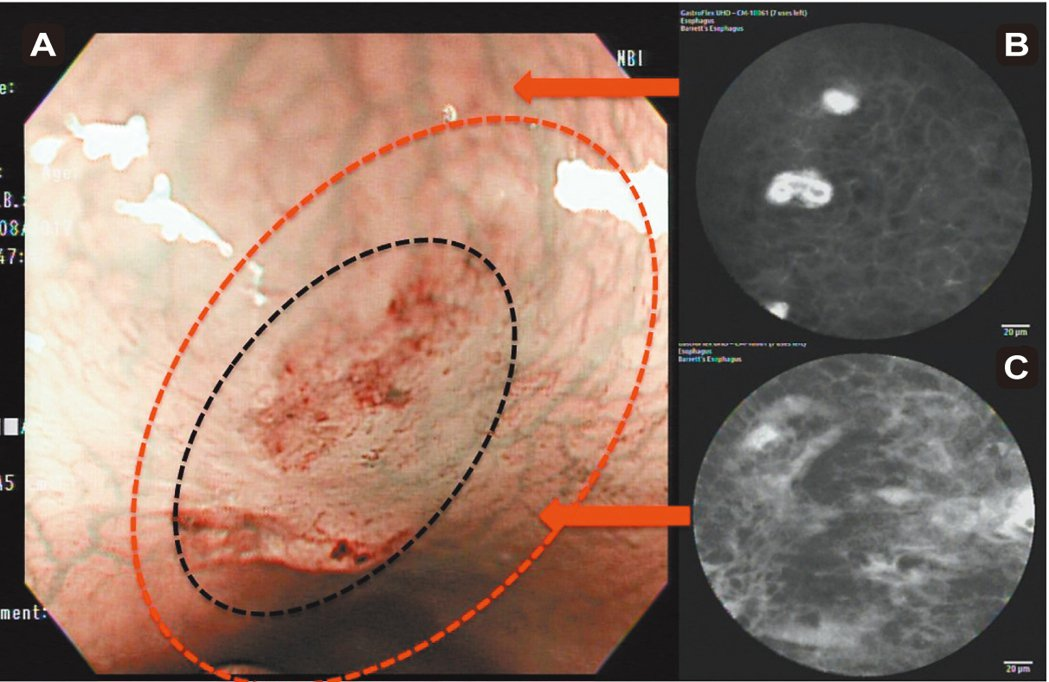 (圖3)A:(黑)窄頻內視鏡下病灶處;(紅)修正後病灶範圍擴大。B:共軛...
