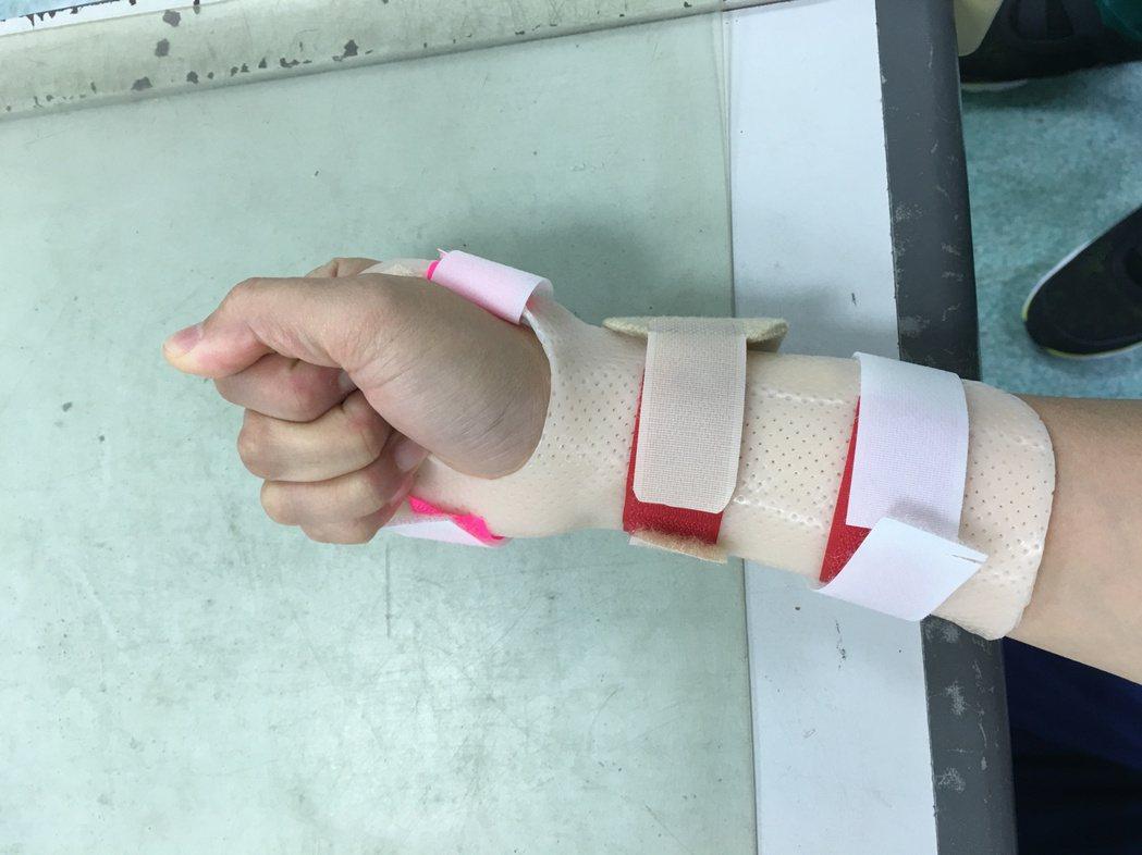 王媽媽因手腕骨折疏於運動,結果引發五十肩。圖/桃園醫院提供