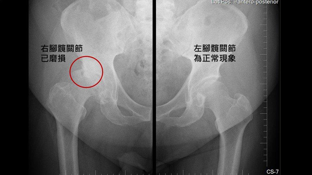 透過X光圖,可見左側的右髖軟骨磨損。圖/長安醫院提供