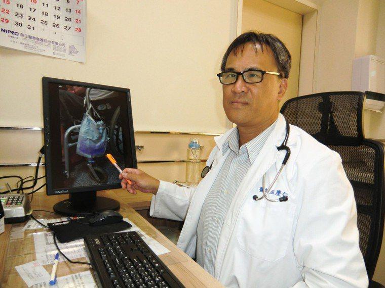 內科醫師巫慶仁說,紫色尿袋症不是怪病,卻是免疫力不佳的警訊,照顧者應注意避免引發...