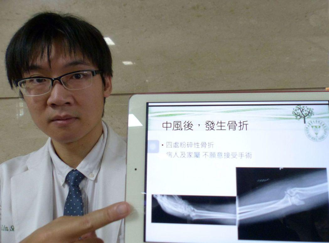 醫師林聖傑說明,55歲男子摔倒後,手肘、手掌出現粉碎性骨折。記者趙容萱/攝影