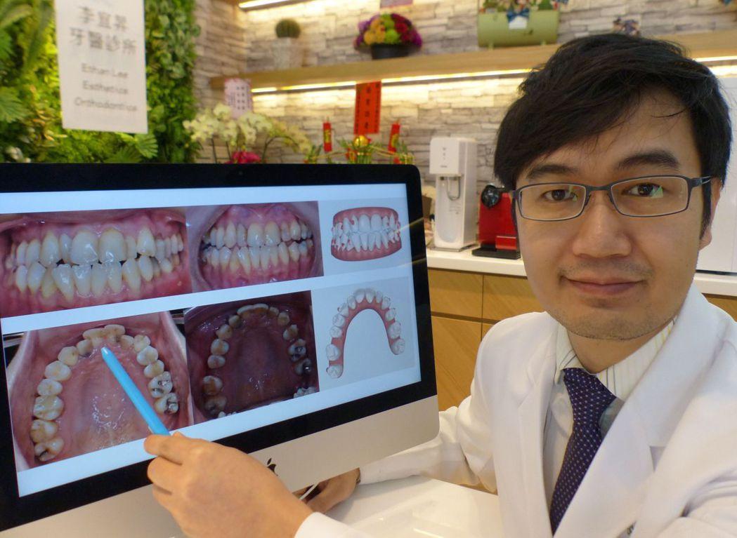 醫師李宜昇說明,鄭姓女大學生經隱形牙套矯正6個月後,牙齒排列變整齊,左圖為矯正前...