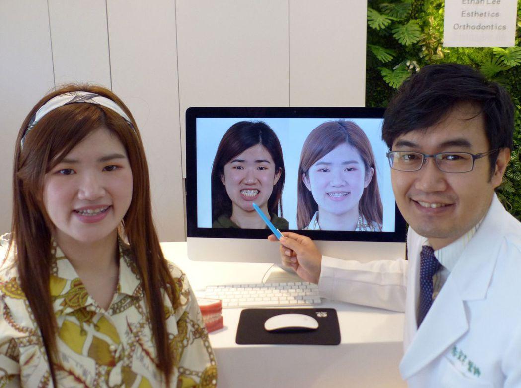 22歲鄭姓女大學生(左)經牙套矯正後,從亂牙妹變班花。記者趙容萱/攝影