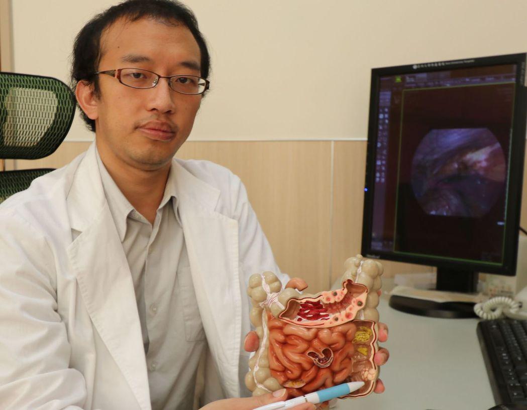 醫師林敬淳建議,50歲以上民眾接受大腸鏡檢查,一般民眾若遇大便習慣改變、腹痛等,...