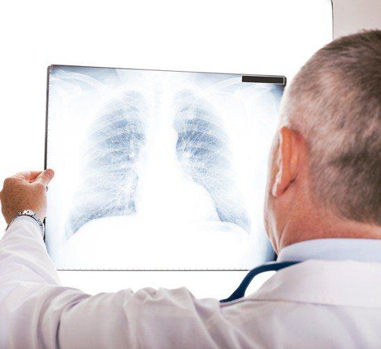 肺。 圖/元氣周報
