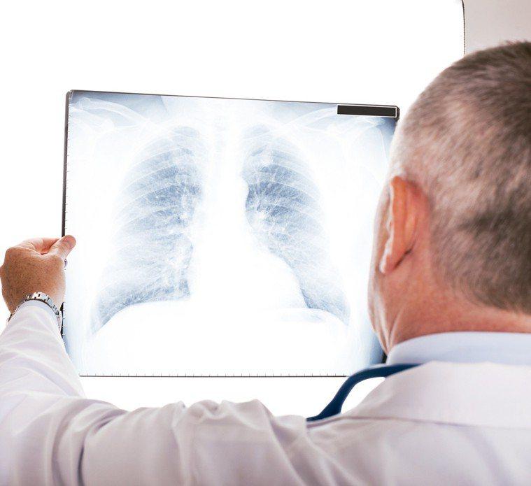 肺炎在老人家的身上致死率高,最好的方式就是從源頭預防感染。 圖/元氣周報