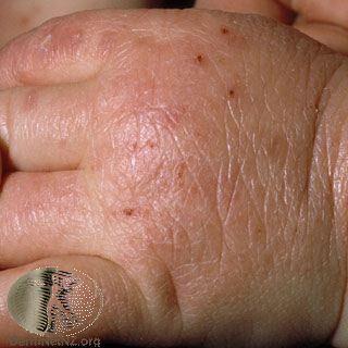 異位性皮膚炎,手部。Photo Credit:DermaNet New Zeal...