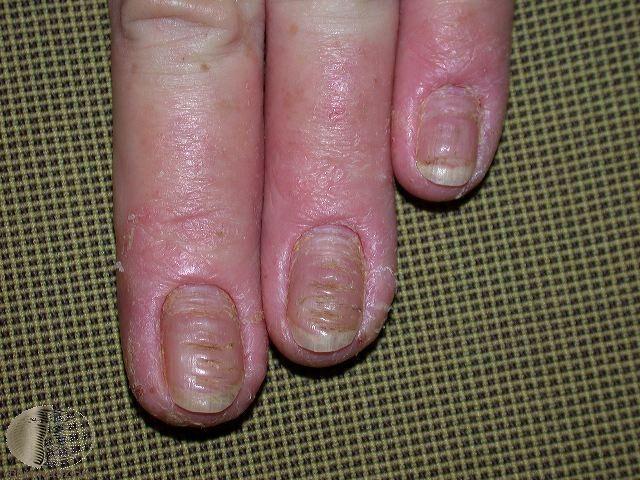 汗皰疹,手部。Photo Credit:DermaNet New Zealand...