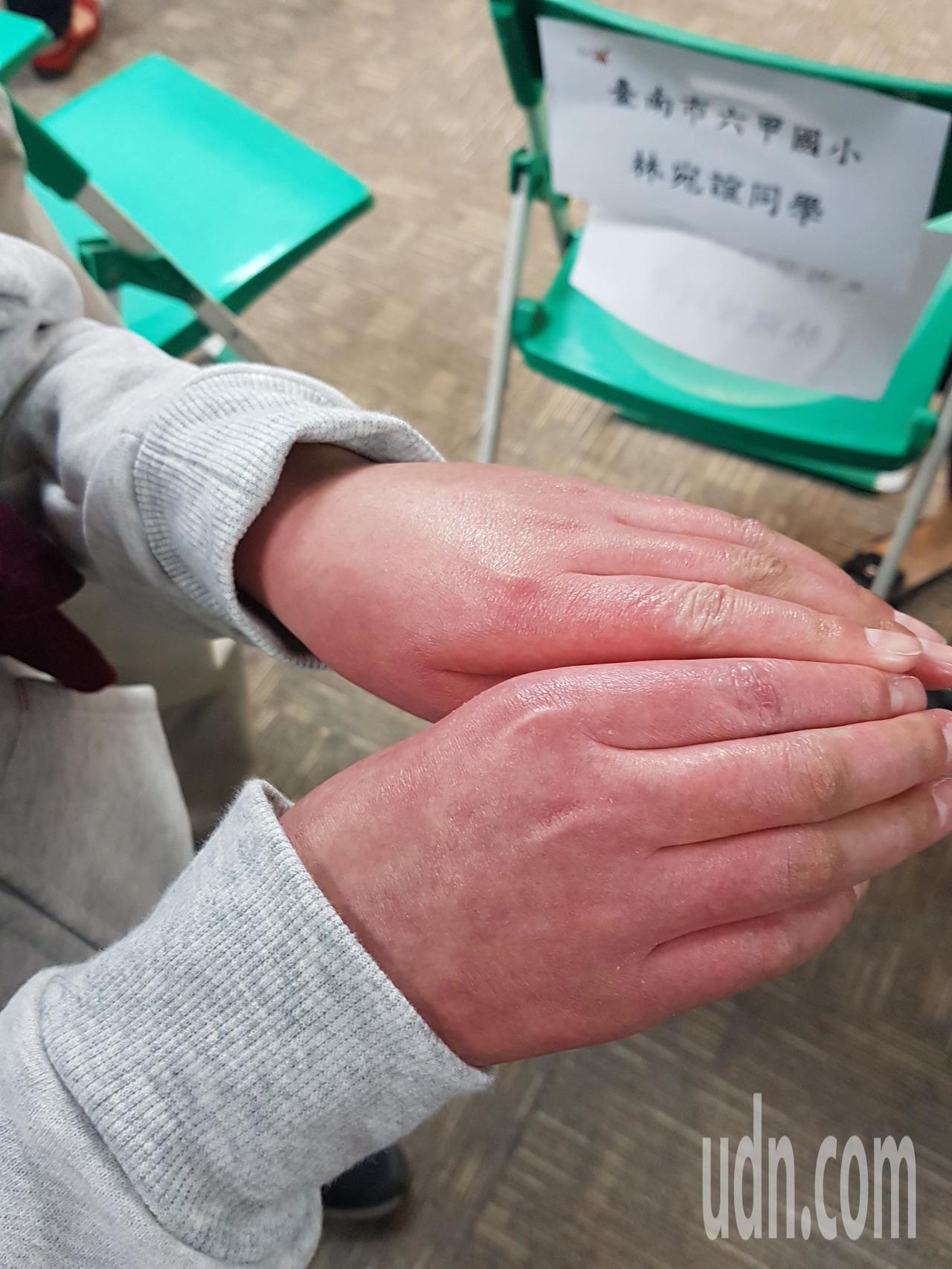 12歲罹患血癌的林宛宜,因接受化療手部紅腫破皮,目前已逐漸恢復 記者修瑞瑩/攝影