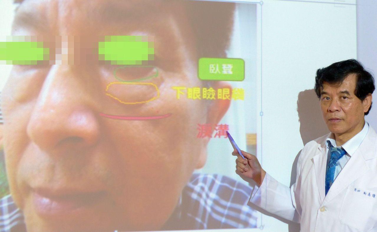 林姓經理因被大學同學誤認為「林教授」,下定決心向醫師鄭森隆求診。記者趙容萱/攝影