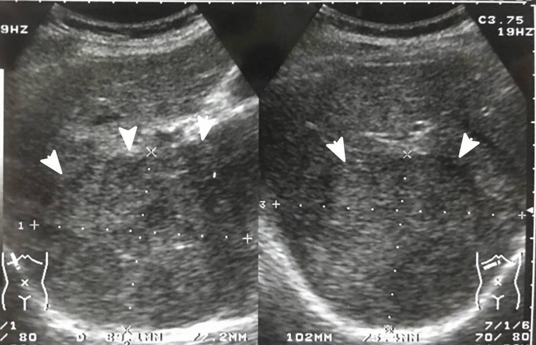 55歲婦人是B肝帶原者,雖定期回診抽血追蹤,檢查都顯示正常,卻因沒照超音波,肝臟...