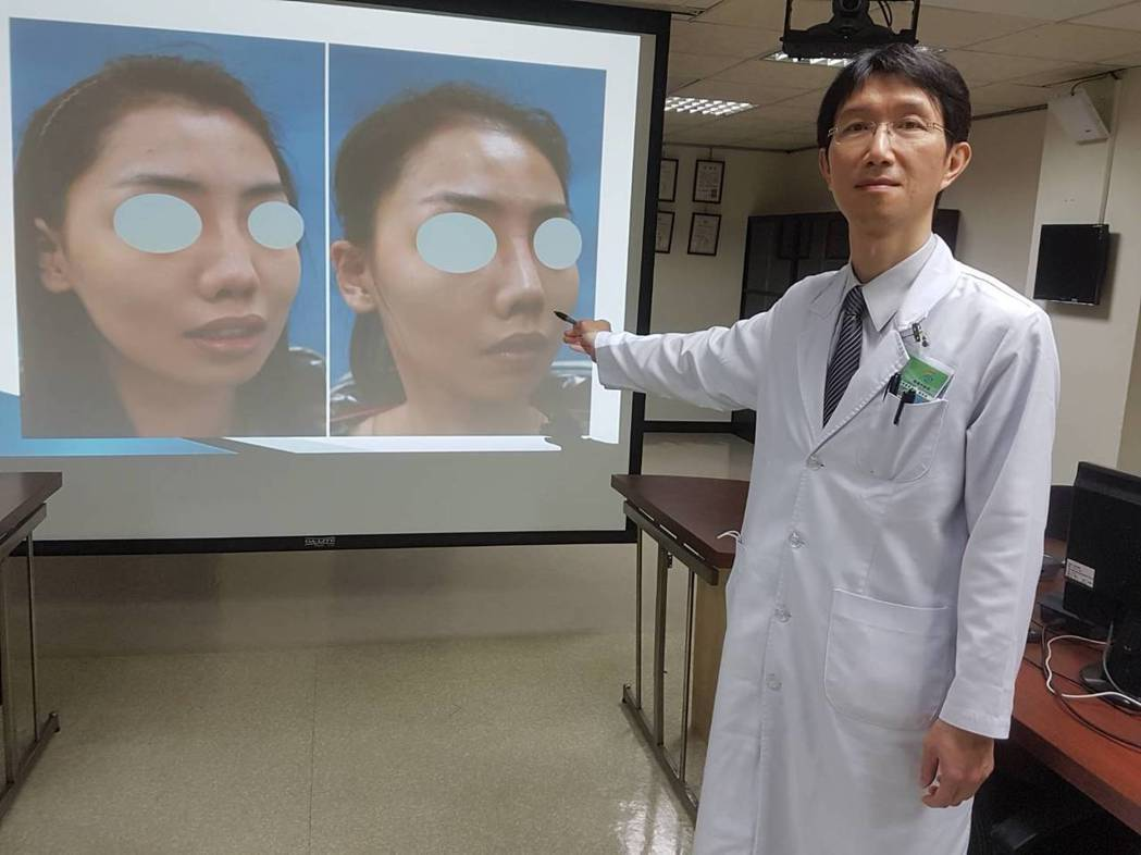 高市聯合醫院耳鼻喉科主任張哲銘針對嚴重發炎感染的鼻塌陷患者,取其自體肋軟骨重建鼻...