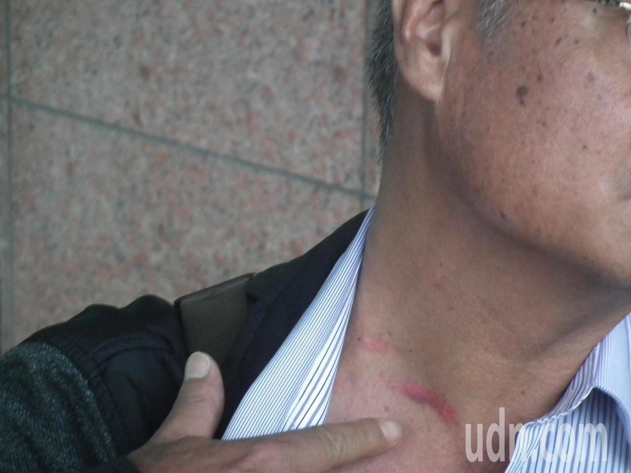 綠島鄉民代表陳建平手指脖子遭劃傷,破皮流血。記者尤聰光/攝影