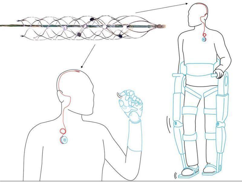 Stentrode可記錄信號並將信號傳導至可穿戴式裝置。(彭博資訊)