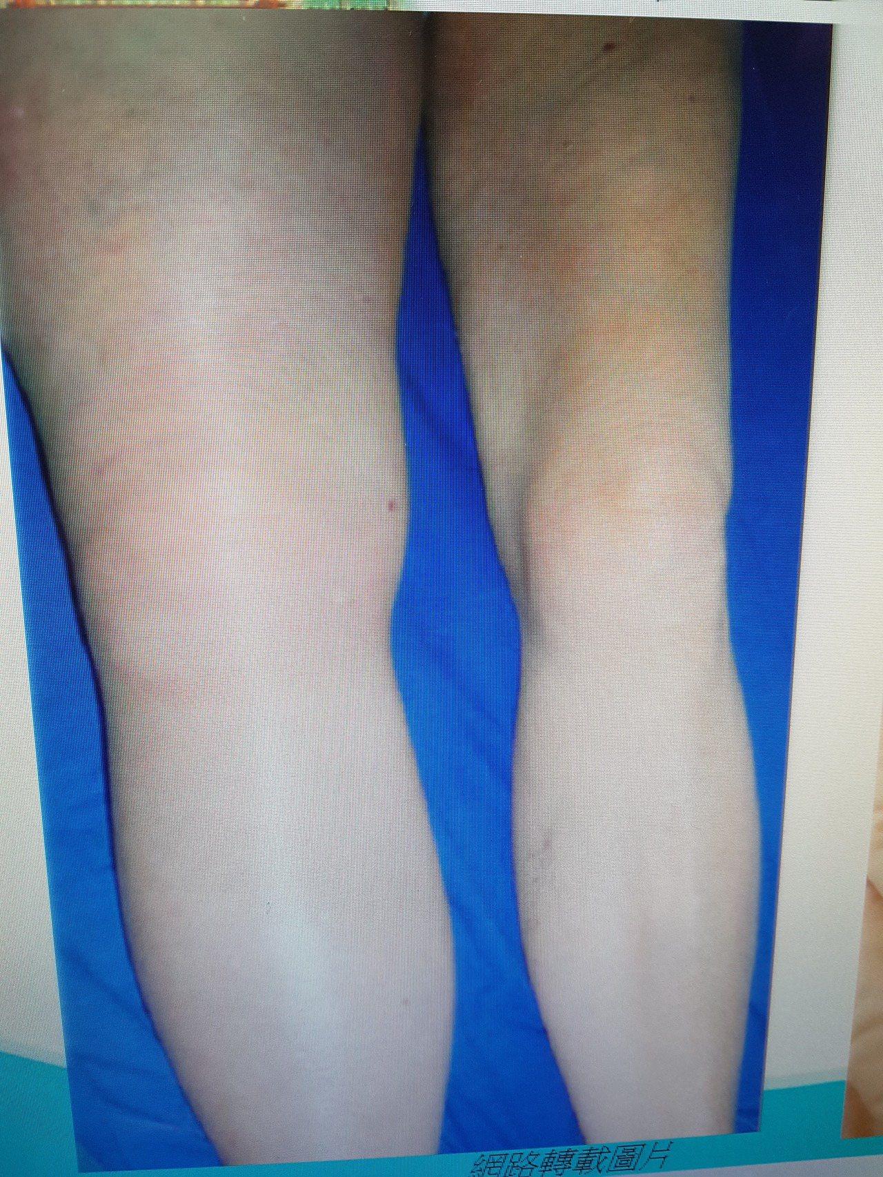 下肢靜脈栓塞可能會有單腳腫脹情況 記者修瑞瑩/翻攝