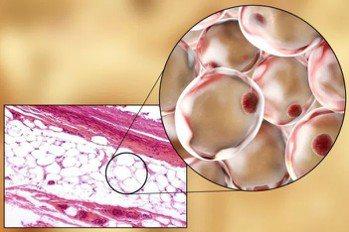 白色脂肪組織 基因線上提供