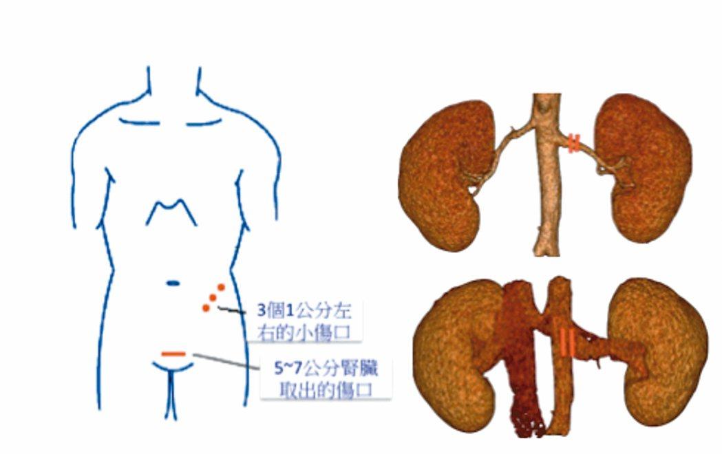 後腹腔鏡腎臟摘取手術,無需開腹,利用3個1公分小洞直接進入後腹腔,切斷腎臟血管,...