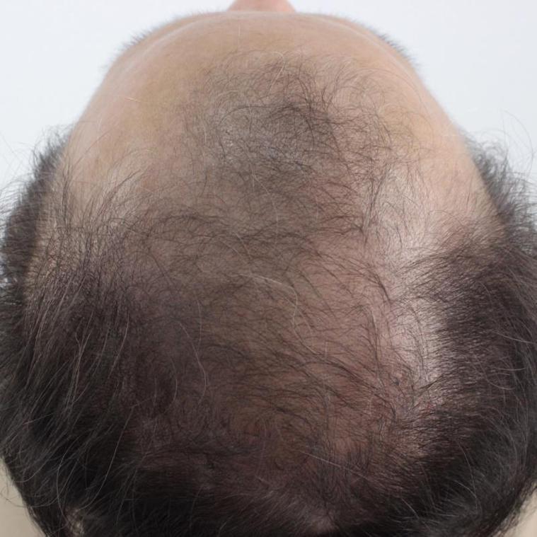 掉髮嚴重,整個頂部都受到影響。 圖片提供/MedPartner 美的好朋友