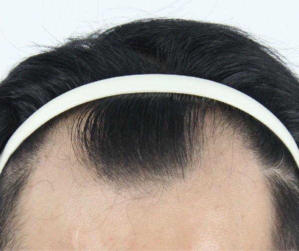 以髮際線後退的表徵為主要掉髮跡象 圖片提供/MedPartner 美的好朋友