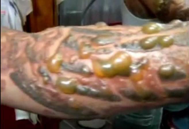 一名男子紋身疑因感染,造成手臂冒出許多黃綠色的水泡,宛如「苦瓜手」。 圖擷自Dr...