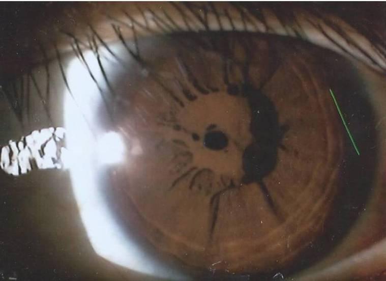 14歲張姓少年右眼瞳孔上包覆著一大片厚實瞳孔膜,導致光線無法射入眼底成像,僅能看...
