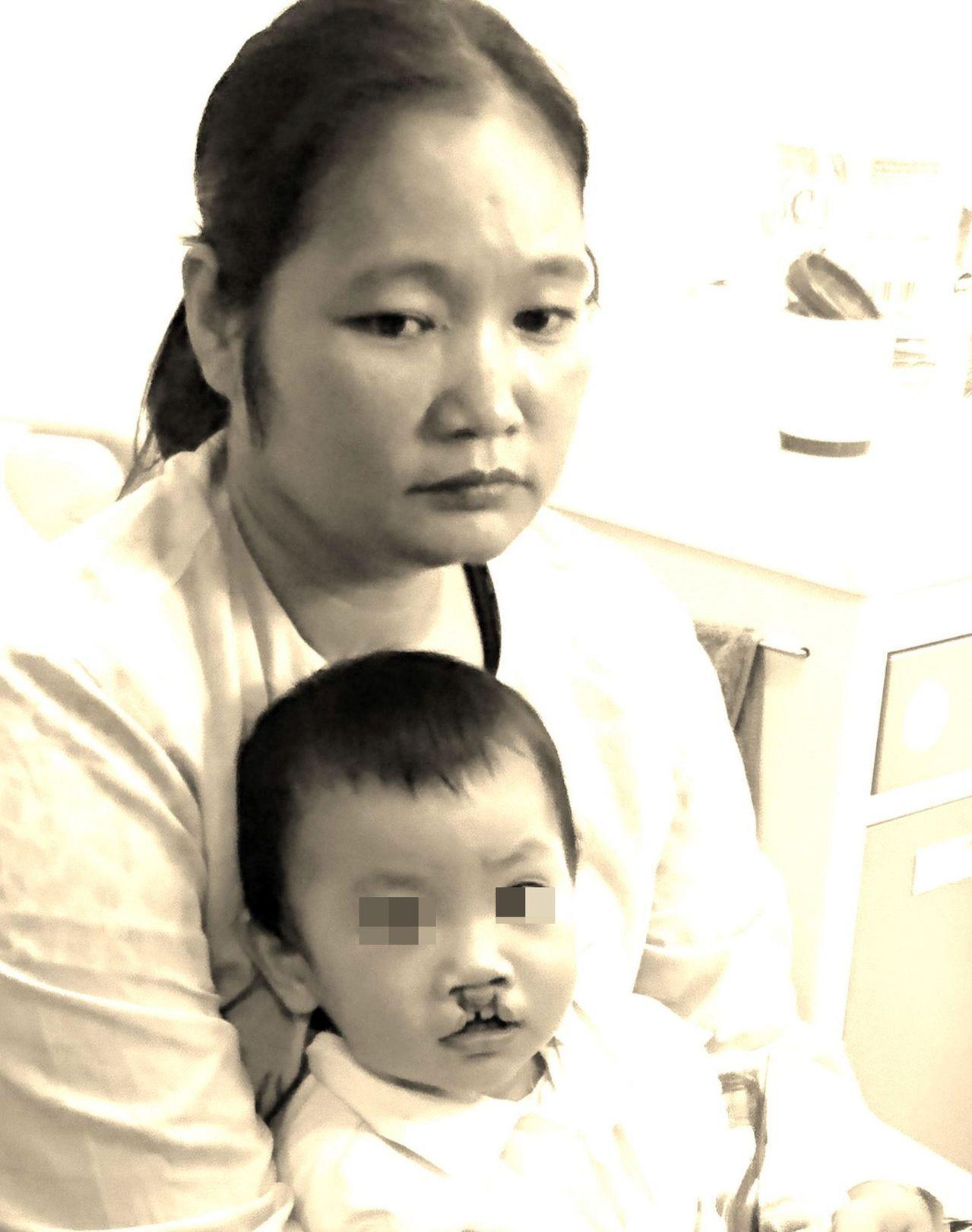 在越南,家有唇顎裂病童,成為父母心頭千斤重擔,圖中母親告訴義大醫師,這樣的處境已...