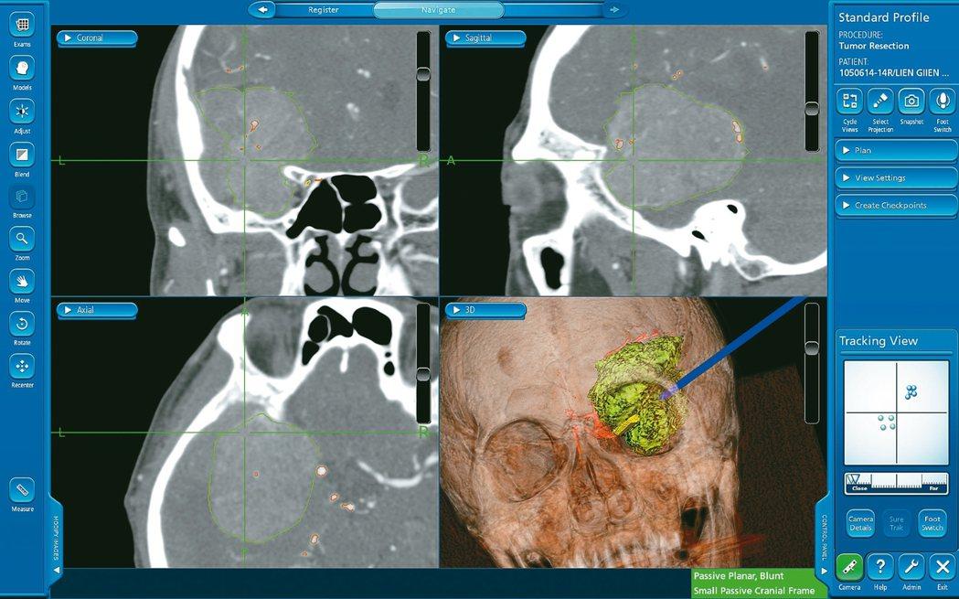 圖3:在神經導航導引下進行手術,給予病患與醫師雙重保障,圖中綠色代表腫瘤,紅色為...
