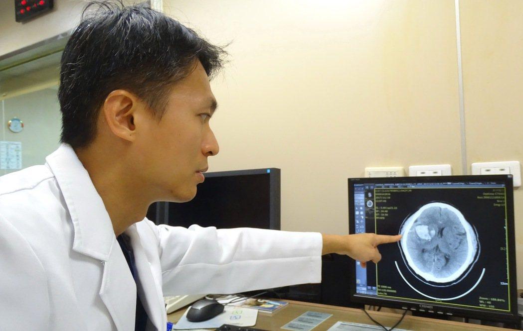 員榮醫療體系最近收治多件腦溢血病例,心臟內科主任陳裕峰說,長期反覆性頭痛,又有惡...