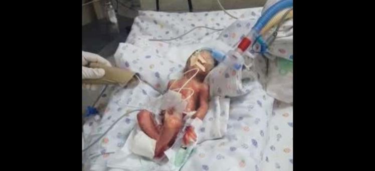 男嬰被醫院宣布死亡,不料家人正要準備火葬時,竟然發現男嬰孩在呼吸。圖/擷自每日郵...