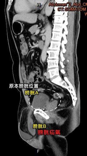 從電腦斷層影像,可清楚看見陳先生的膀胱明顯從腹腔「擠」出一部分到腹股溝內,形成一...