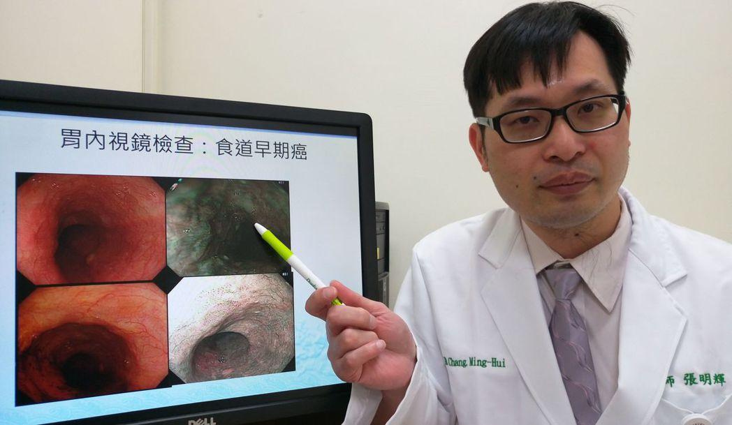 醫師張明輝說明,黃姓病患是扁桃腺癌追蹤,意外發現一期食道癌,所指處為食道癌。記者...