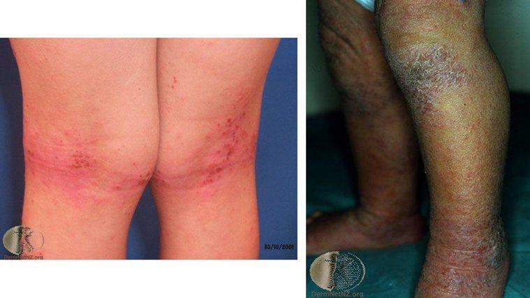 左圖:在四肢屈側(膝蓋後方)的異位性皮膚炎。Photo Credit:Derma...