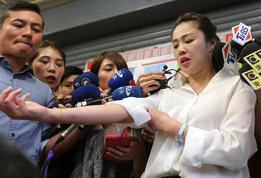 李婉鈺日前秀出手臂傷痕,指已驗傷會對涉毆打她的員警提告。 聯合報系資料照/記者胡...