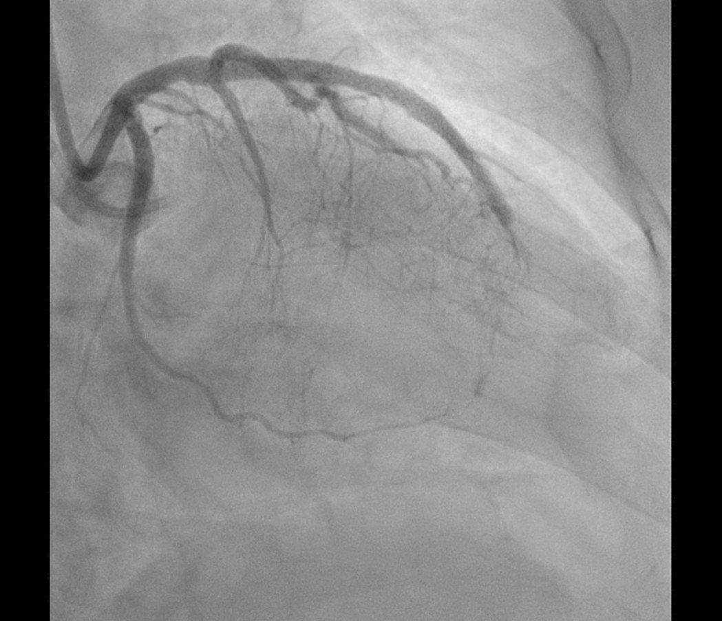 陳姓上班族的心臟動脈阻塞一條半,差點沒命。圖/彰基提供