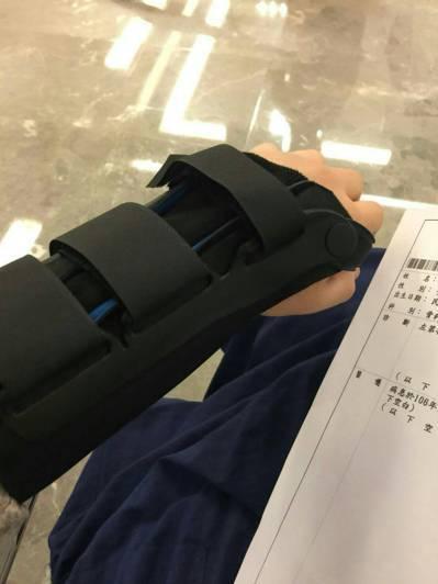嘉義市33歲蔣姓女子遭擋車的不鏽鋼路阻絆倒,造成左手掌兩根手指頭骨裂、右膝擦傷等...